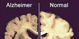 Causa do Alzheimer