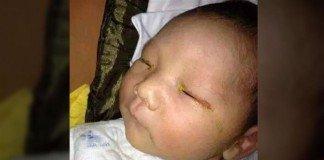 Bebé fica cego