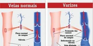 Varizes
