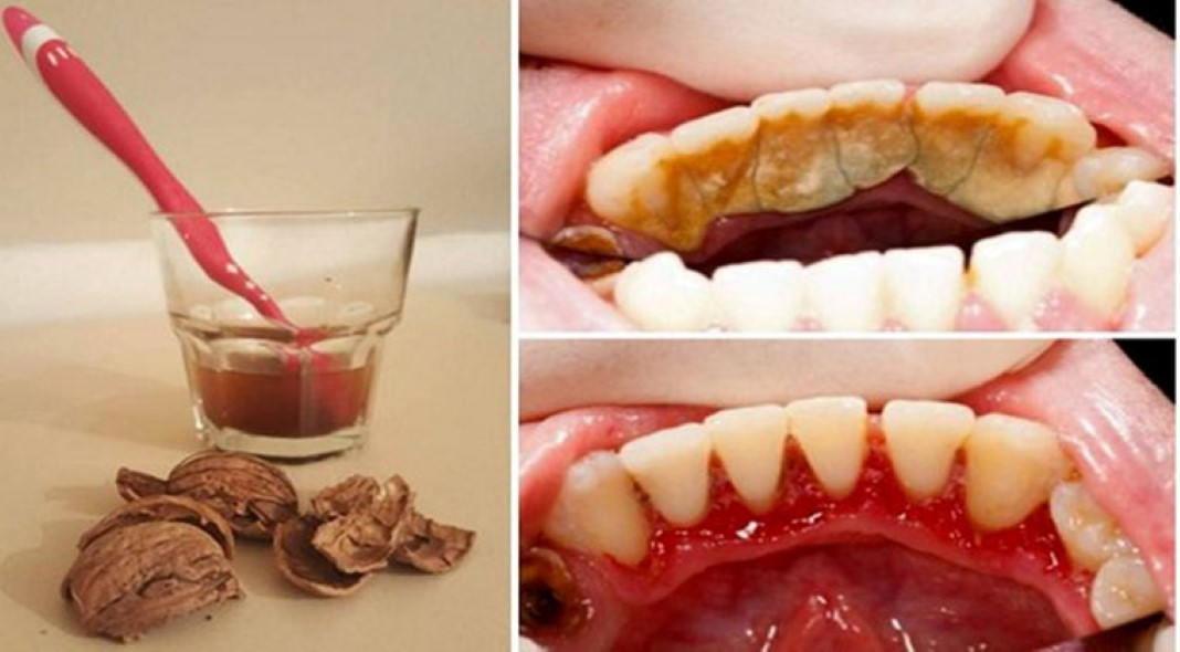Elimina a placa bacteriana de forma simples e sem sair de casa - Eliminar sarro en casa ...