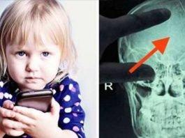 Pediatras alertam