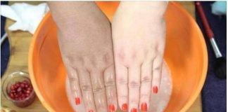 Mãos manchadas