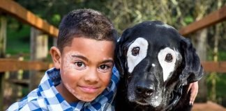 Criança de 8 anos com vitiligo