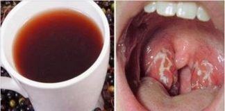 Infeção na garganta