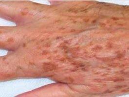Manchas na pele