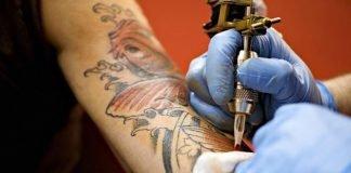 Remover tatuagens