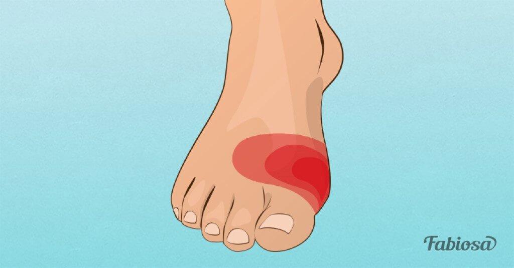 Problemas nos pés