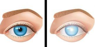 Duas mulheres ficaram cegas