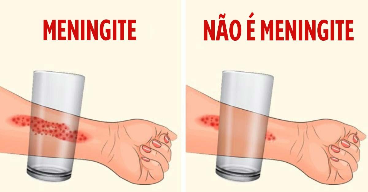 sintomas de meningite