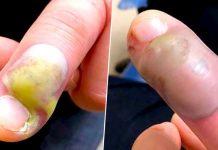 Roedor frequente de unhas